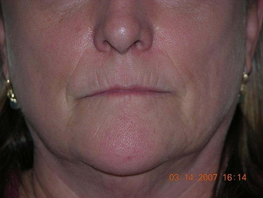 Juvederm Filler Before