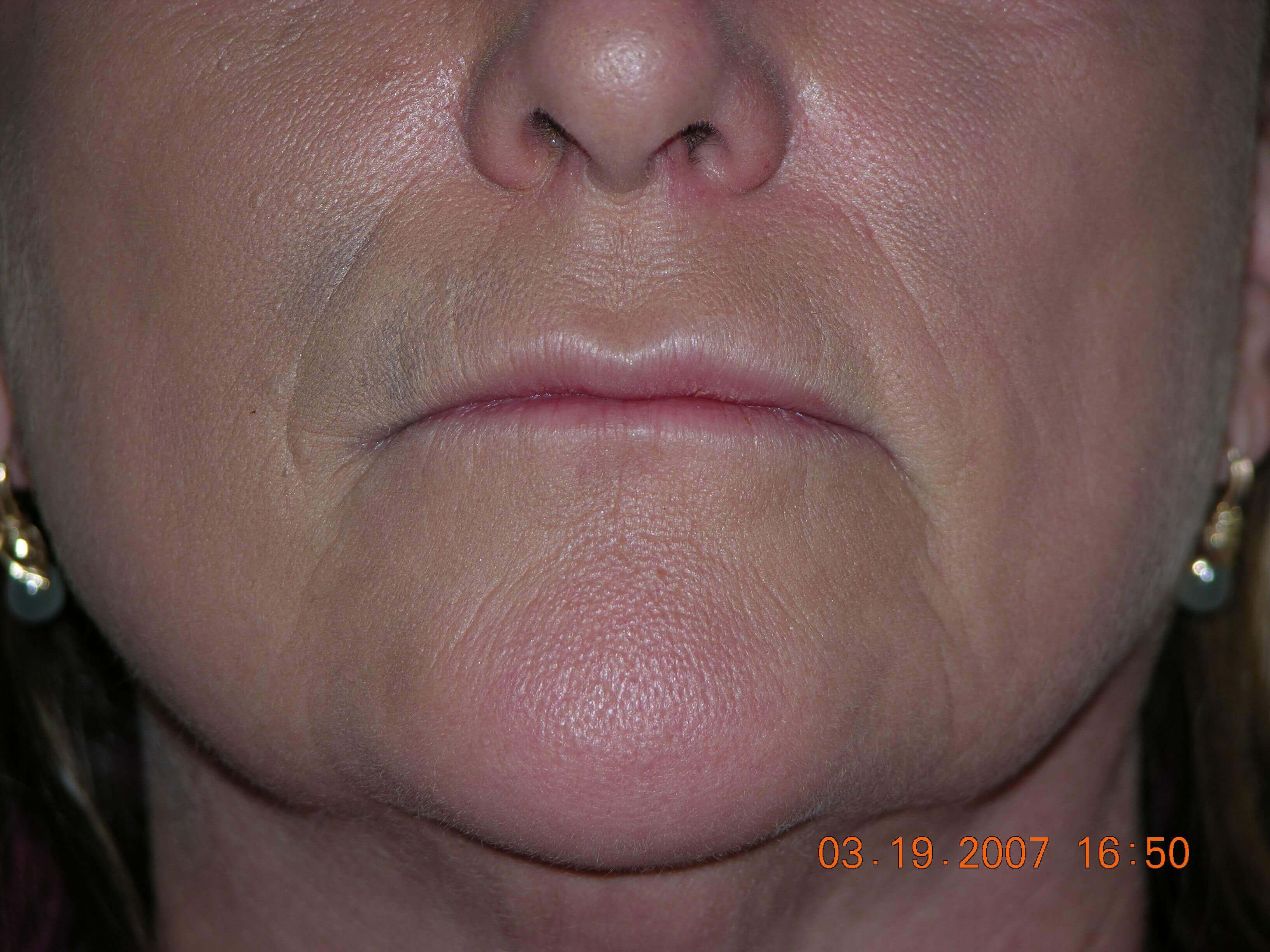 Juvederm Filler After