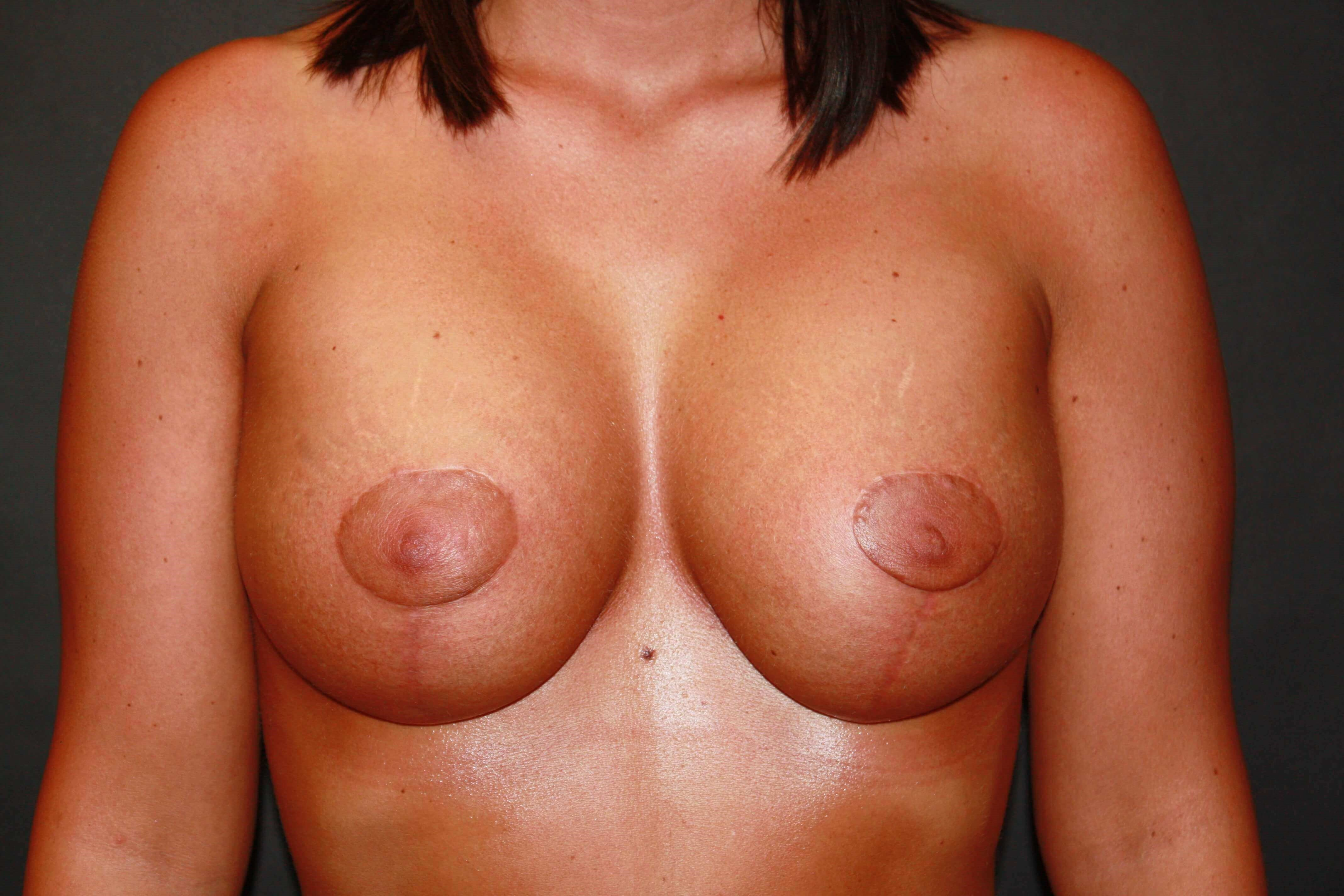 Breast Augmentation/Mastopexy After