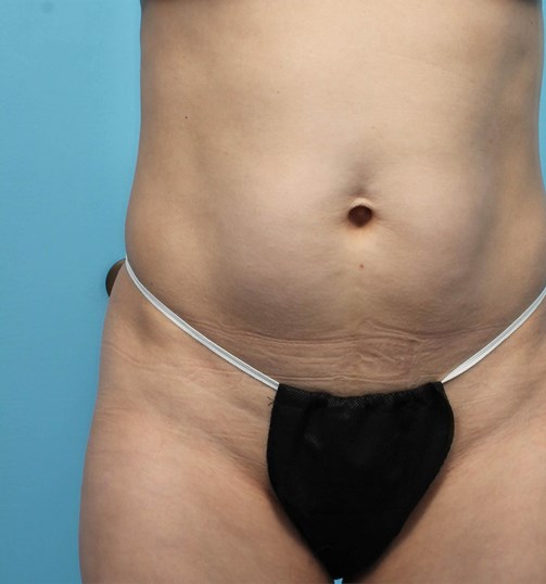 Front View of CoolSculpting Before CoolSculpting