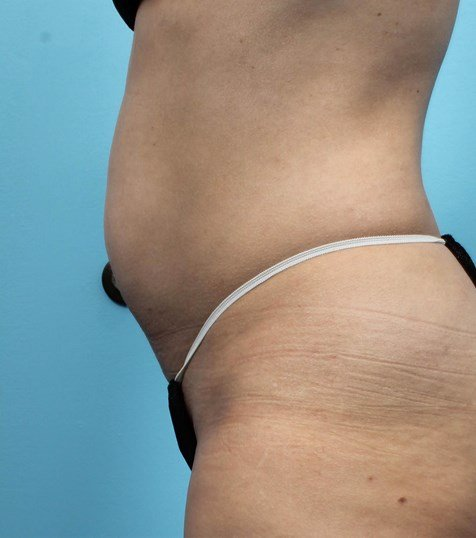 Side View of CoolSculpting Before CoolSculpting
