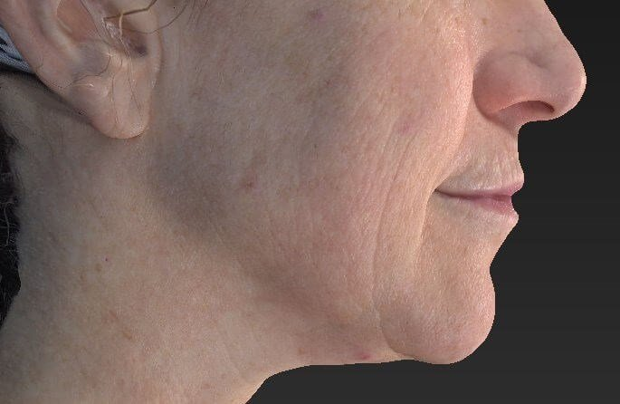 CO2 Fractional Resurfacing Before