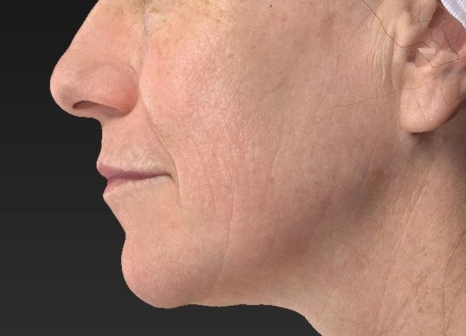 CO2 Fractional Resurfacing After