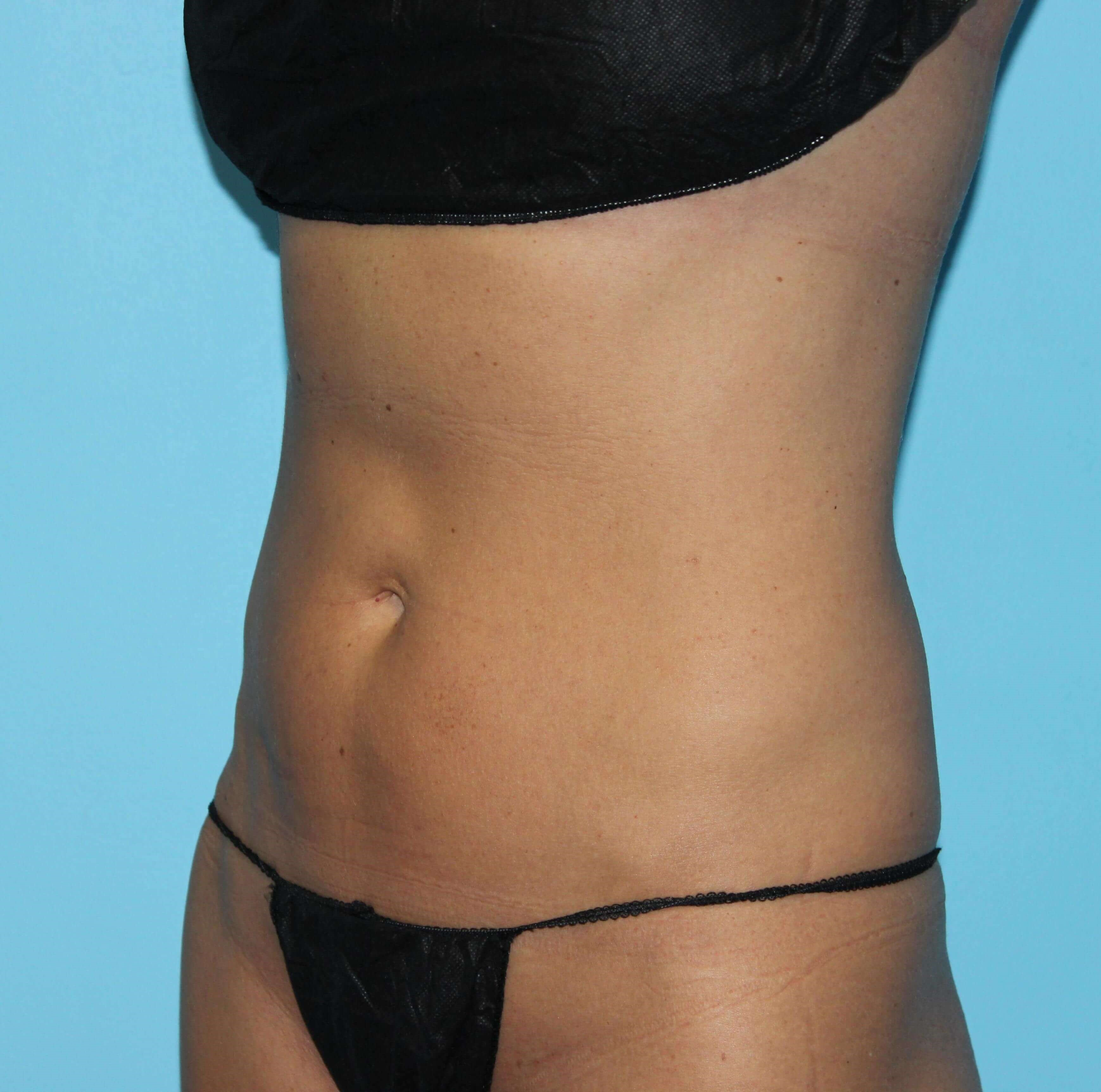 Vanquish for Fat Reduction After