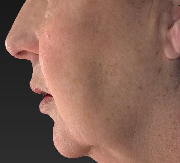 Left Side of Face After IPL Before