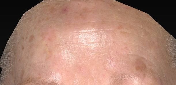 Forehead after IPL Treatment Before