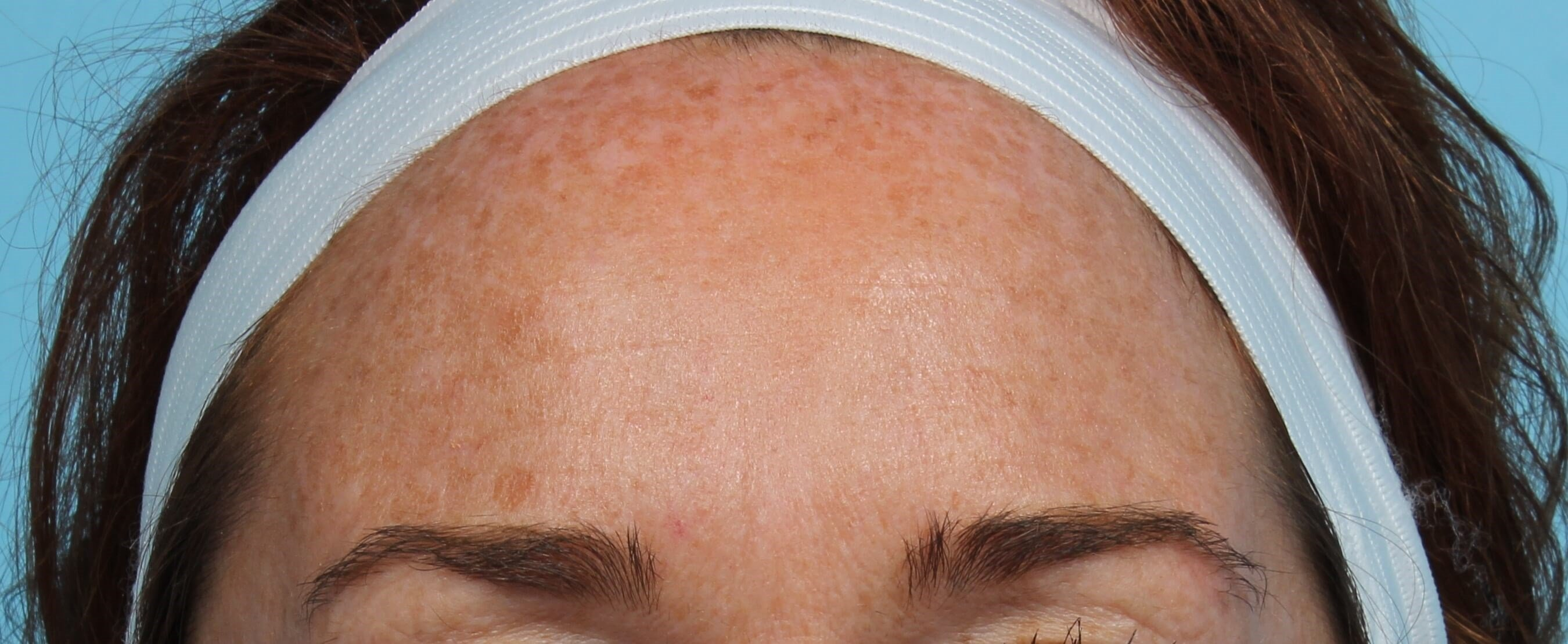 Forehead after IPL Laser Before