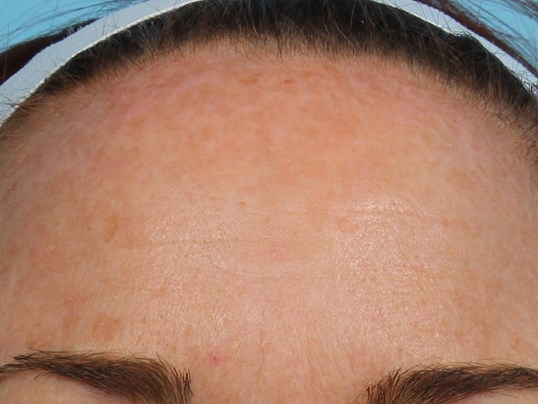 Forehead after IPL Laser After