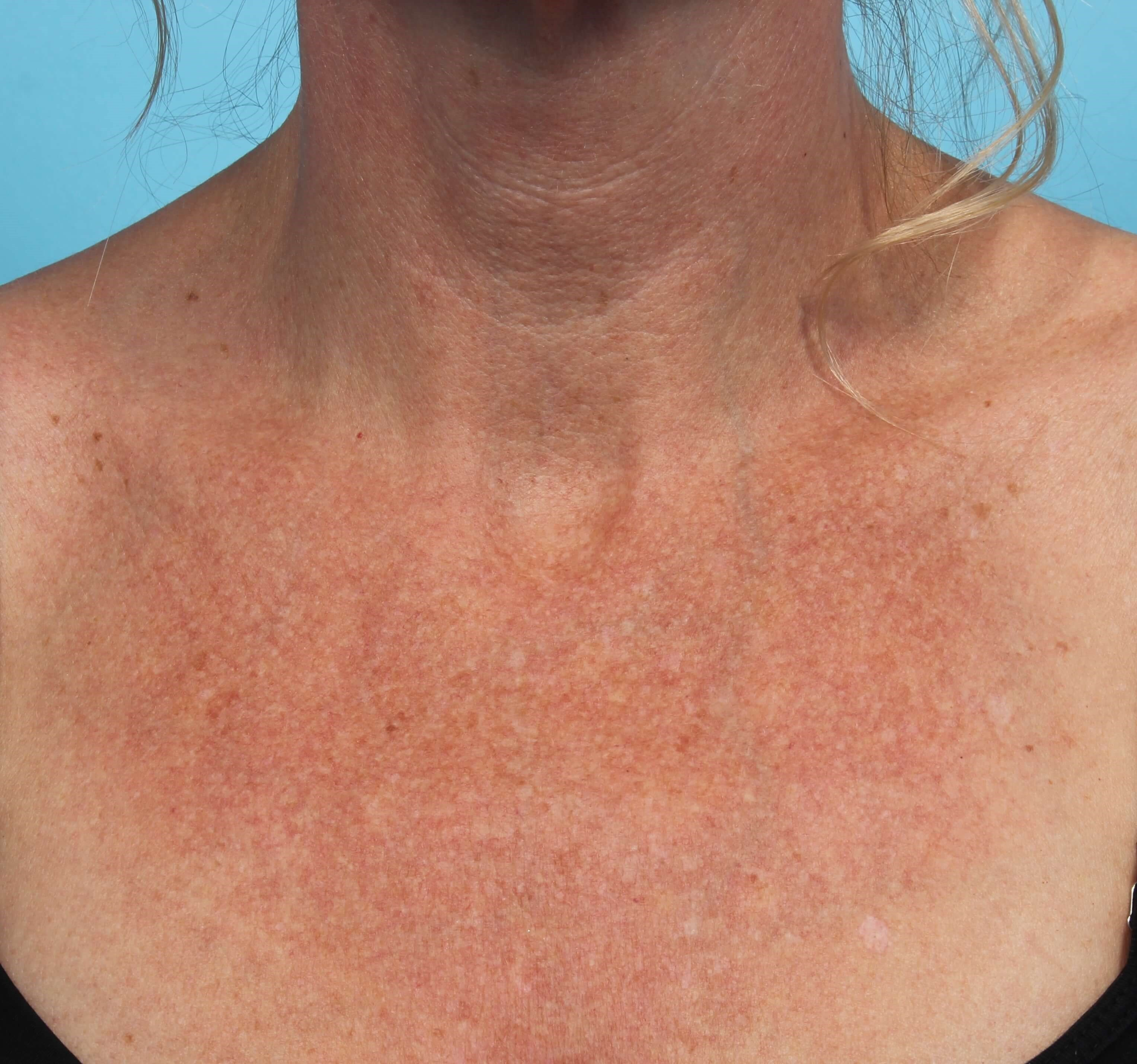 IPL Pigment Therapy for Chest Before