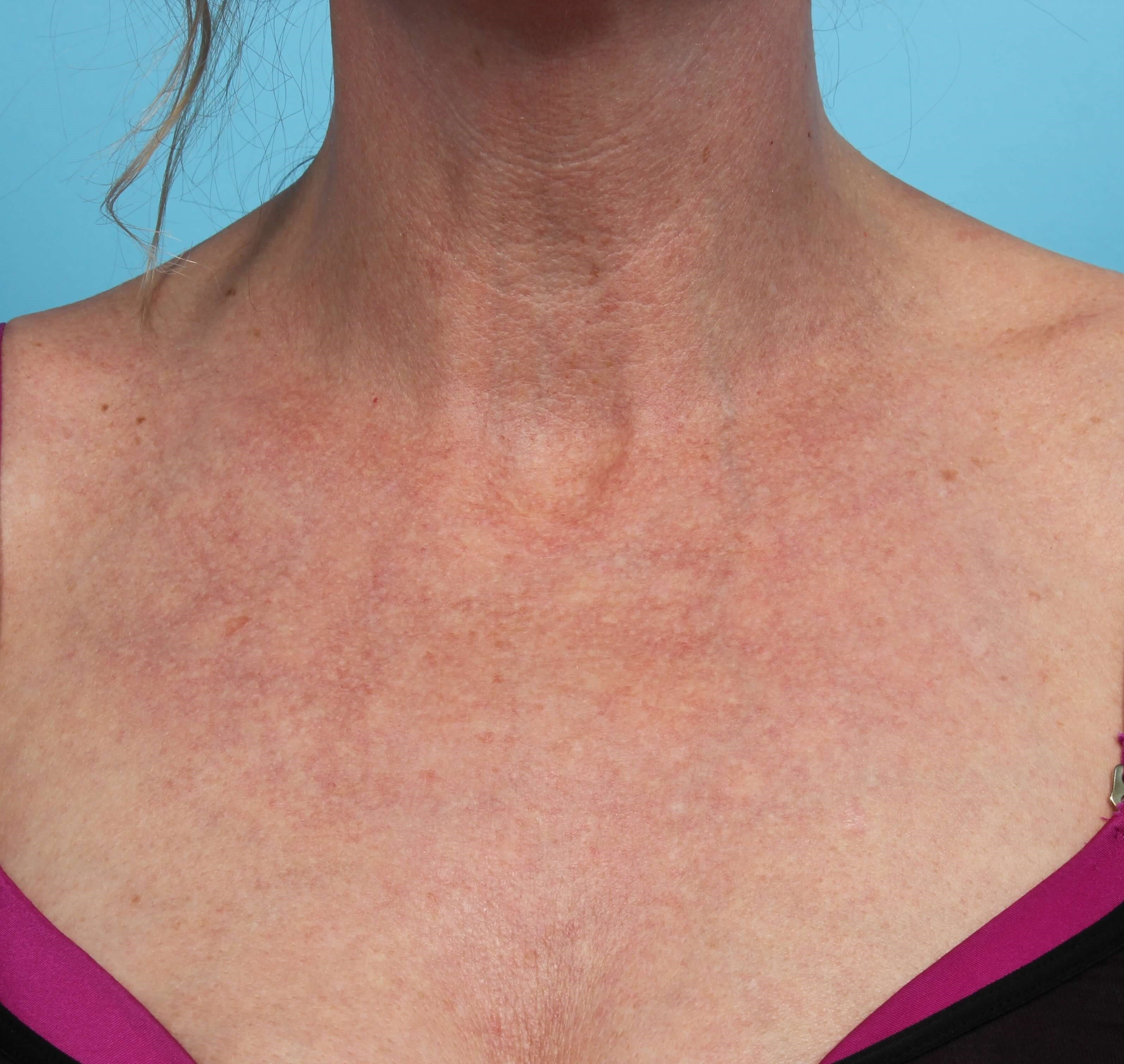 IPL Pigment Therapy for Chest After