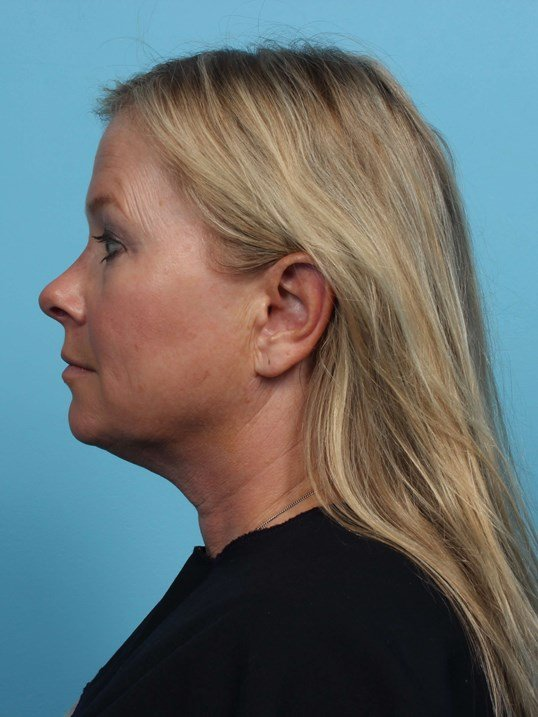 Exilis Lower Face and Neck Before