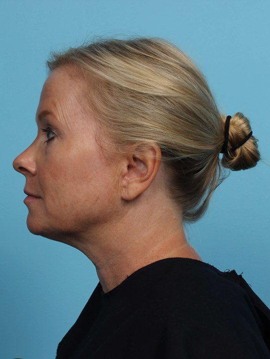 Exilis Lower Face and Neck After
