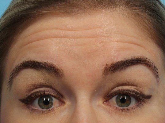 Botox for forehead lines Before