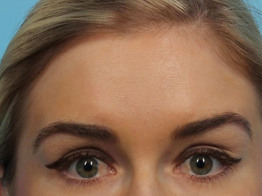 Botox for forehead lines After