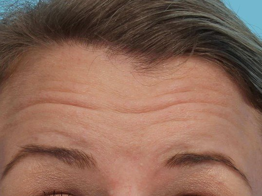 Botox for Forehead  Wrinkles Before