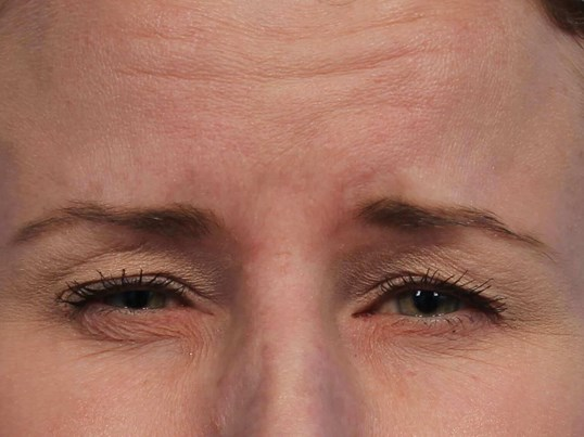 Botox for Glabella Lines Before