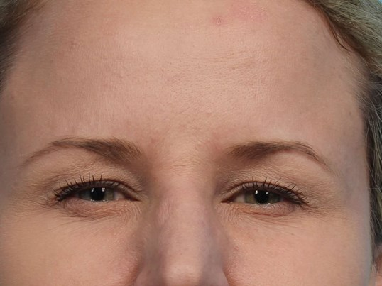 Botox for Glabella Lines After
