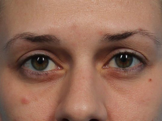 Restylane Filler for Eyes Before