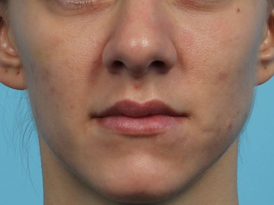 Filler for Cheek Enhancement After