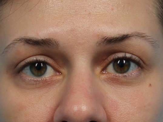Restylane Filler for Eyes After