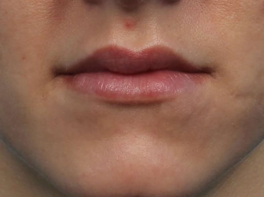 Restylane Filler for Lips After