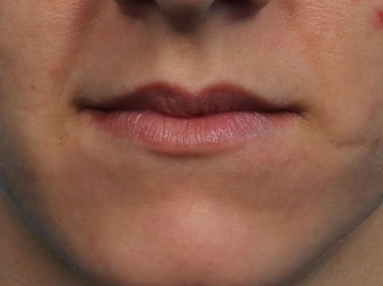 Restylane Filler for Lips Before