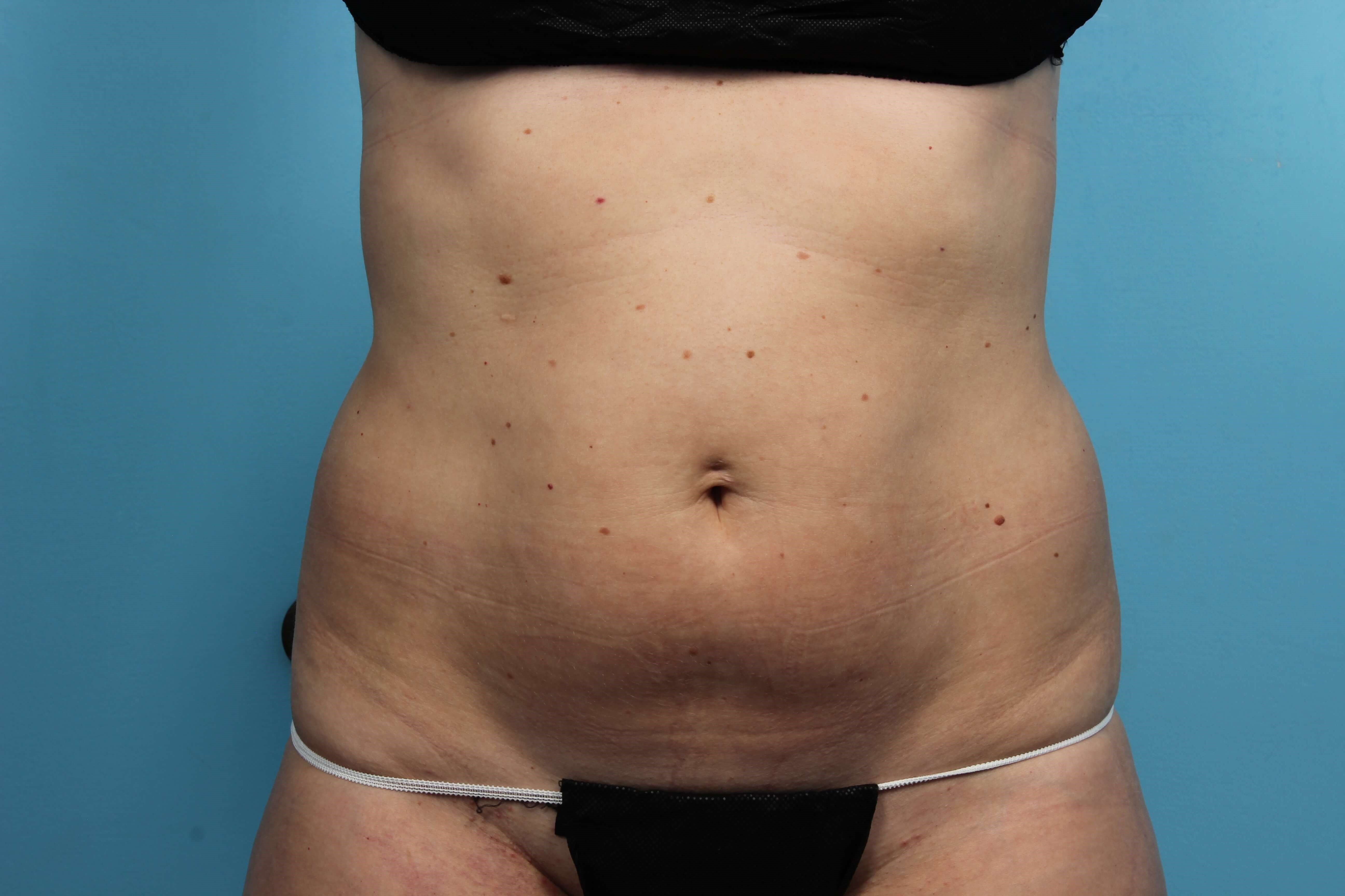 CoolSculpting Body Shaping Before