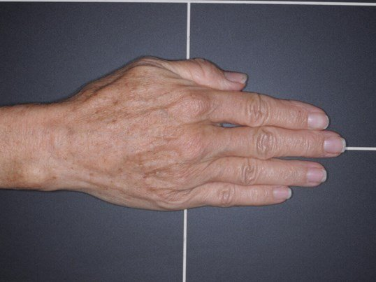IPL for Sun Spots on Hands Before