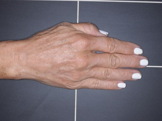 IPL for Sun Spots on Hands After