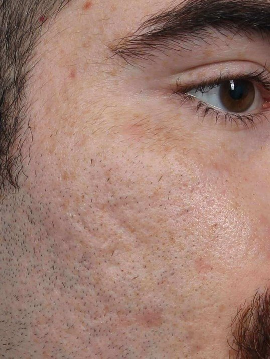 DOT Laser for Acne Scars Before
