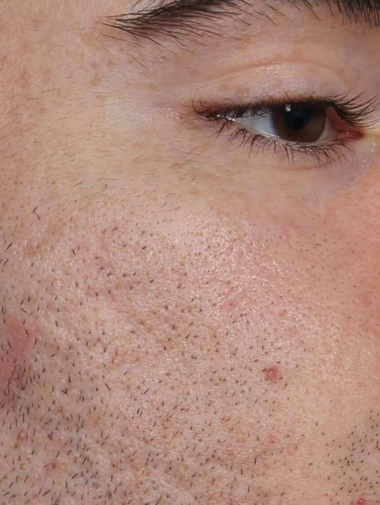 DOT Laser for Acne Scars After