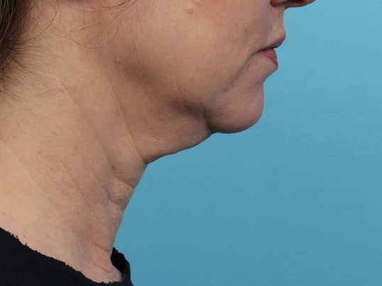 Non- invasive skin tightening Before