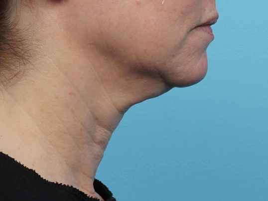 Non- invasive skin tightening After