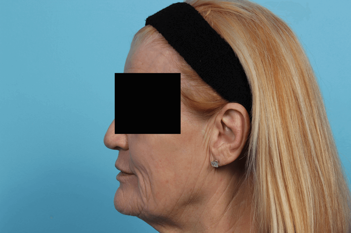 DOT Laser Skin Rejuvenation After