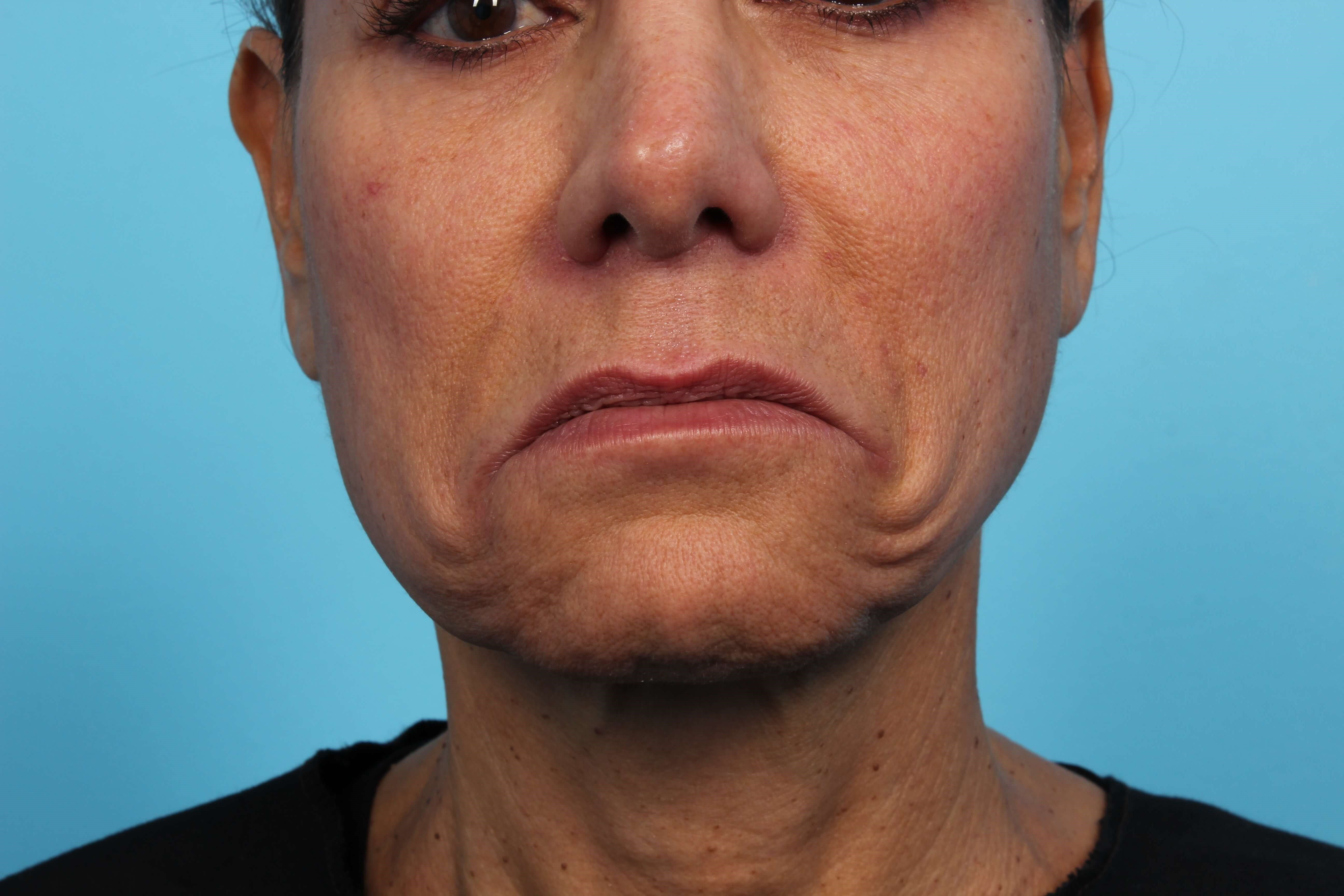 Botox for Frown Lines DAO Before