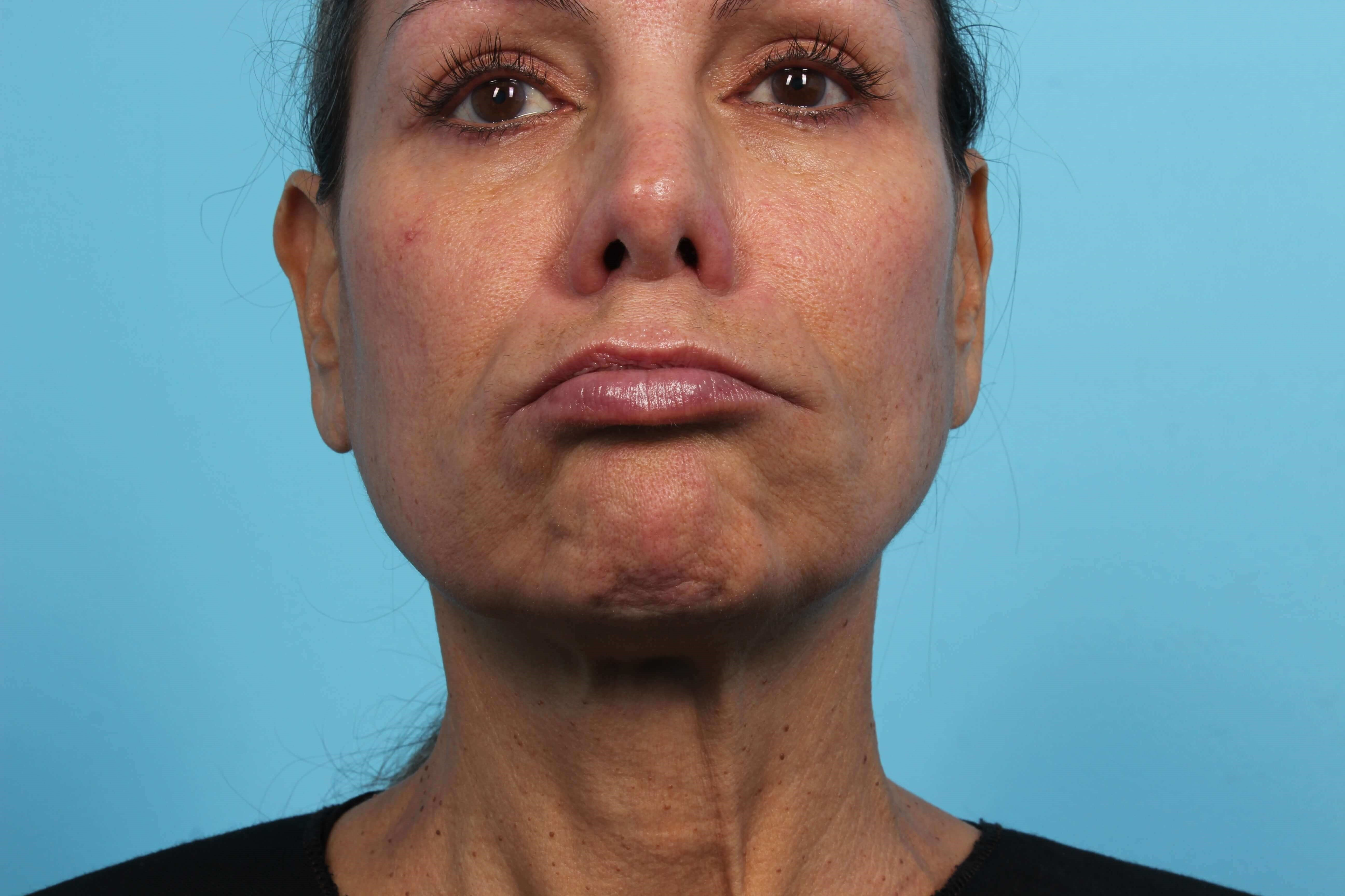 Botox for Frown Lines DAO After