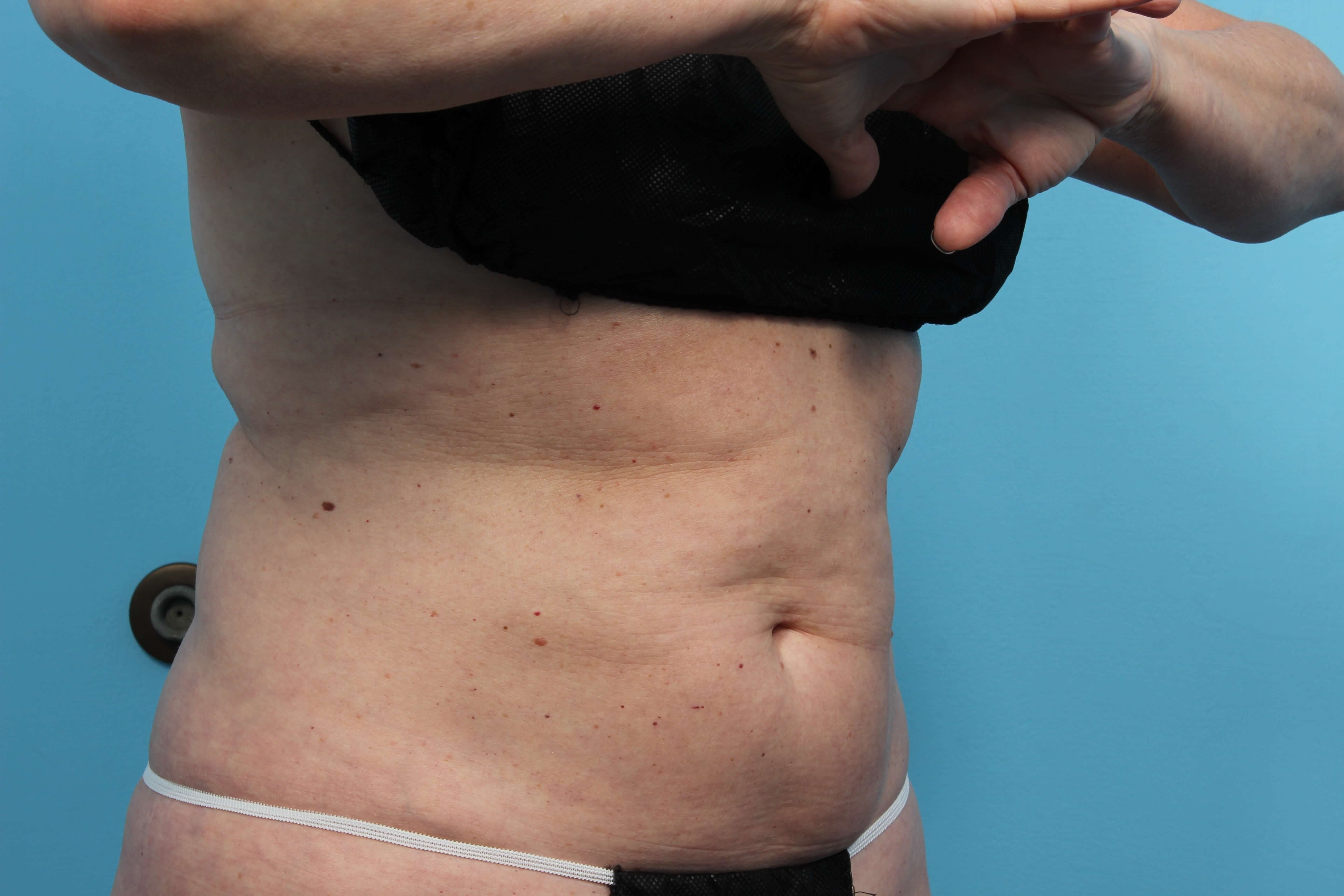 CoolSculpting Body Shaping After