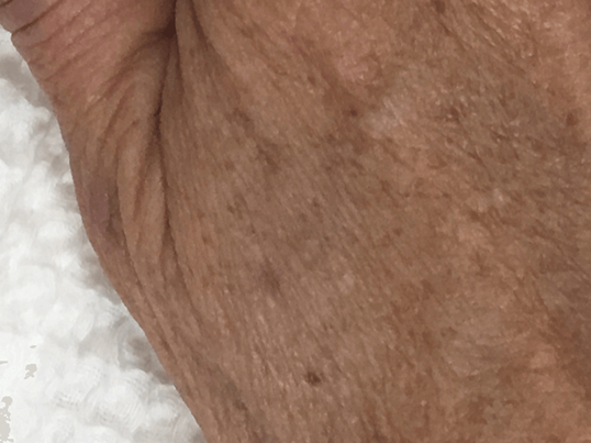 VBeam Laser Dark Spot Removal After