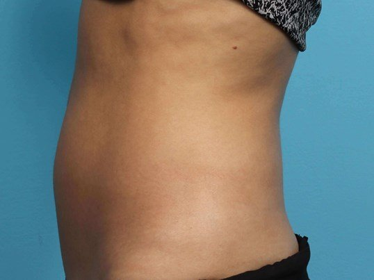 Vanquish Abs Fat Reduction After