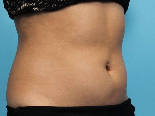Vanquish Abs Fat Reduction Before