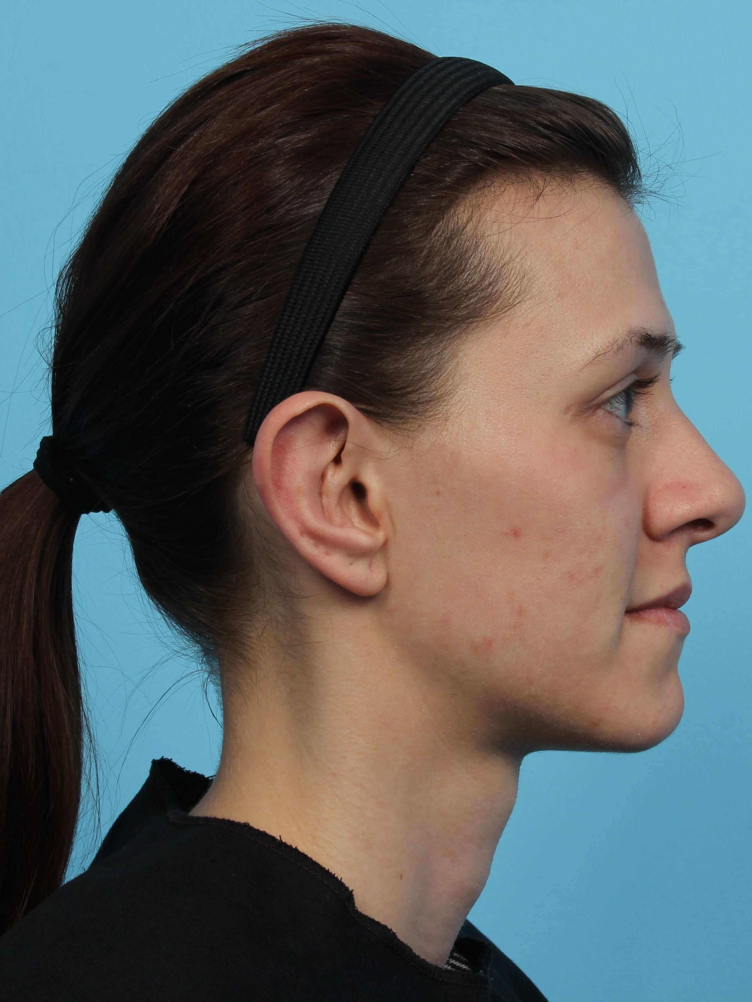 Otoplasty Ear Surgery After