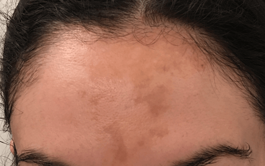 Cosmelan Depigmentation Peel Before