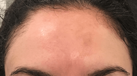 Cosmelan Depigmentation Peel After