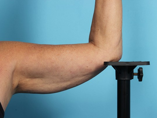 CoolSculpting Arms Before