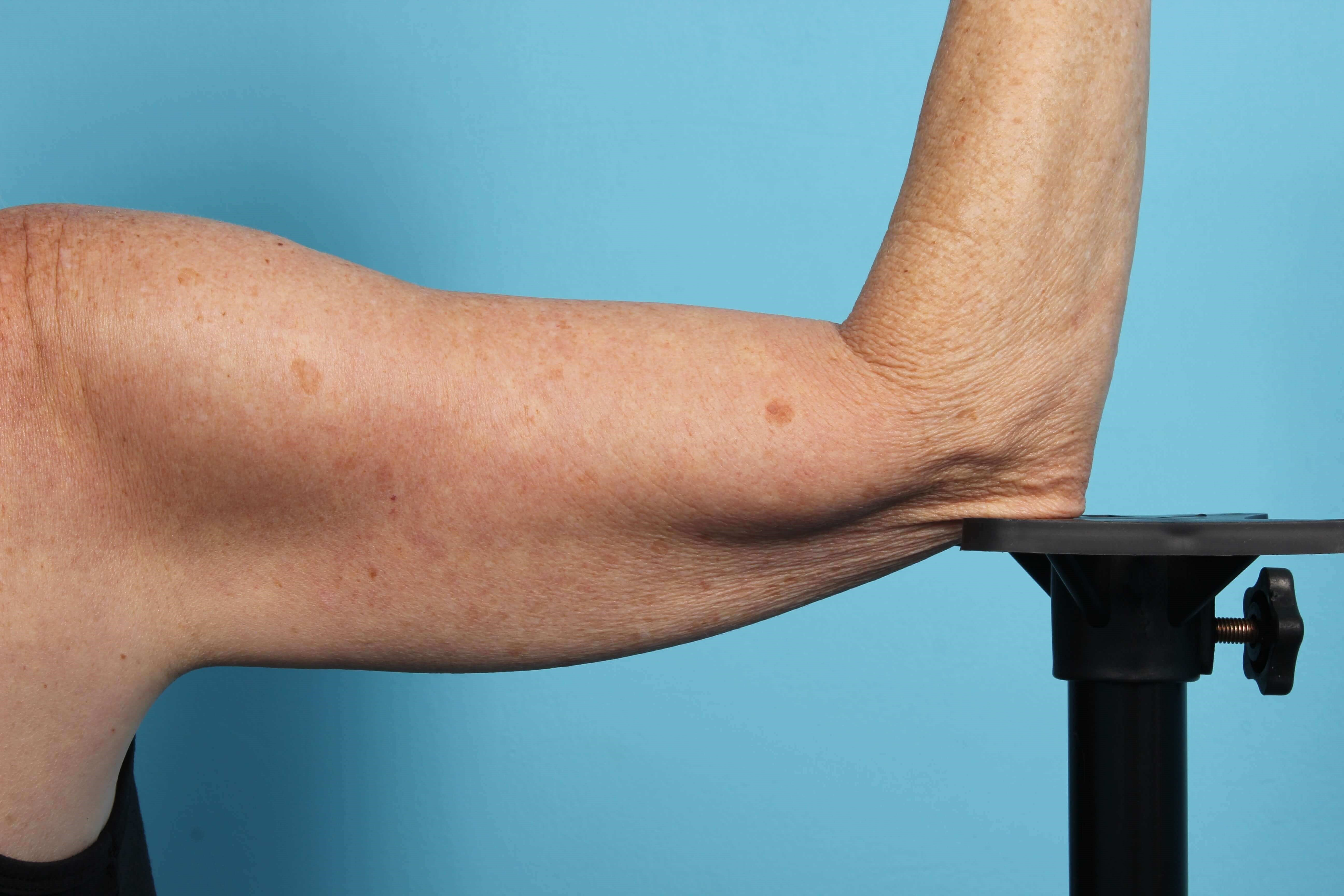 CoolSculpting Arms After
