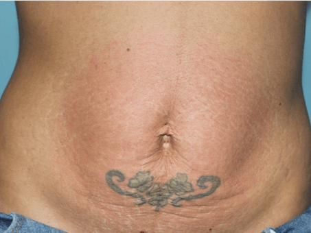 Exilis Skin Tightening Abdomen After