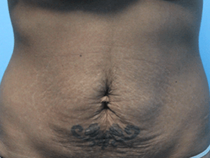 Exilis Skin Tightening Abdomen Before