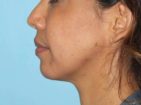 Filler for Jawline Before