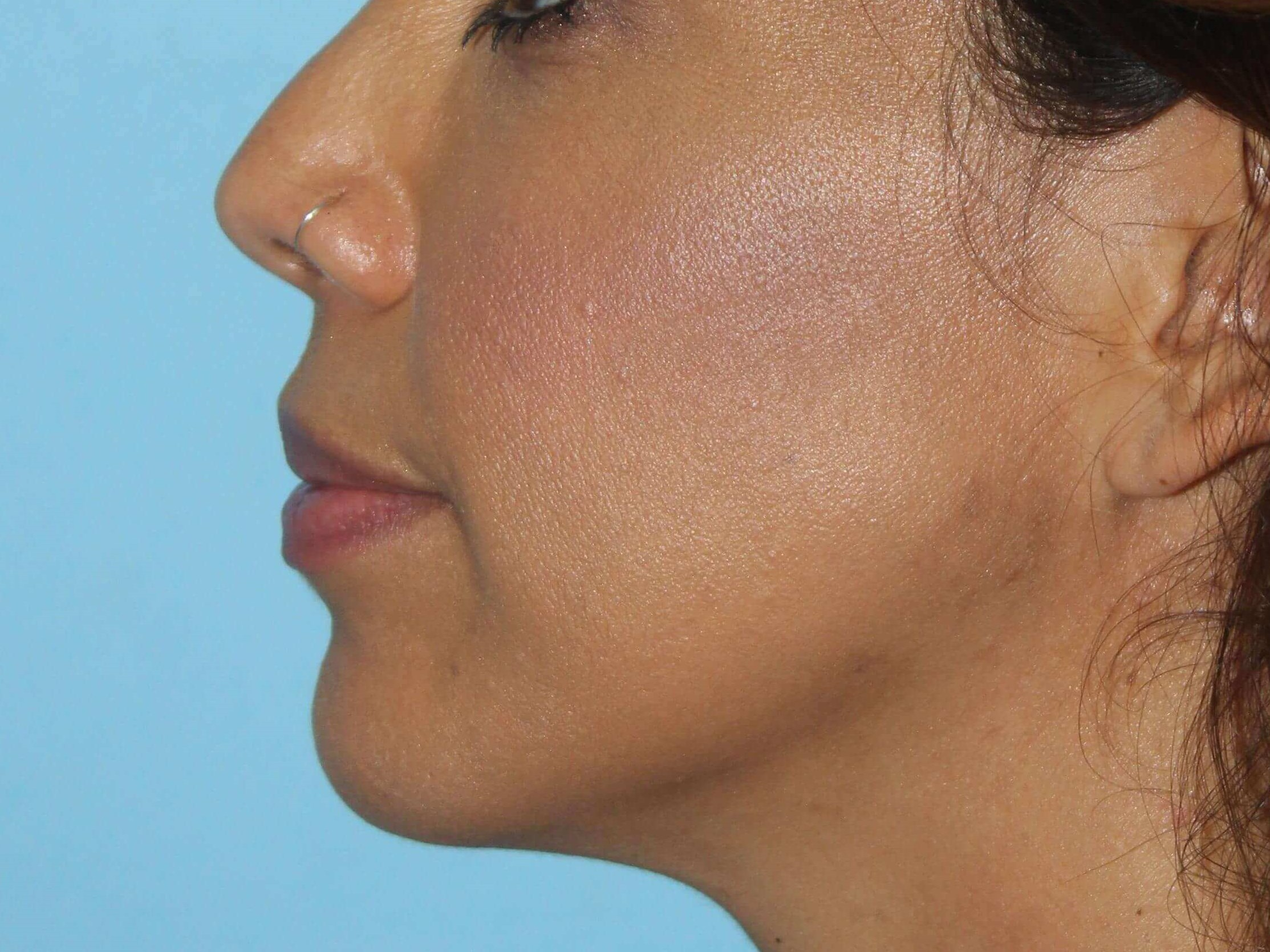 Filler for Jawline After