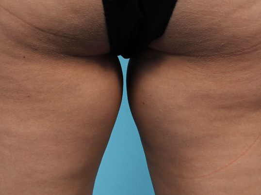CoolSculpting for Inner Thighs Before
